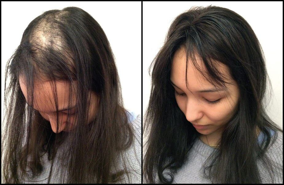 Before And After Hair Extensions Jessica Hyllare