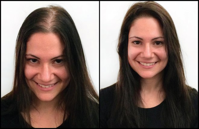 Wig Alternatives For Cancer Patients Alopecia